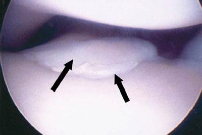 Een artroscopisch beeld van een losse processus coronoideus