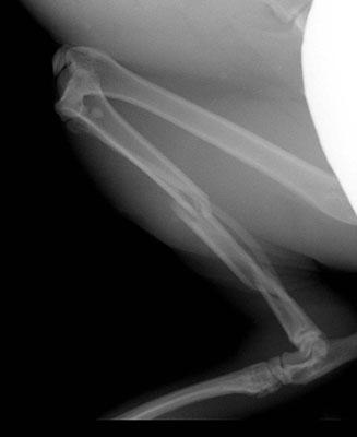 Een dubbele breuk van een scheenbeen (tibia).