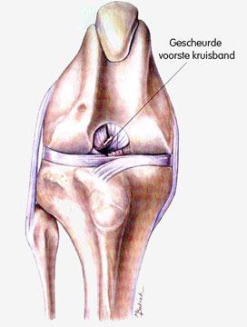 ernstige kniepijn door artrose