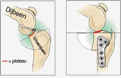 verschillende knie operaties