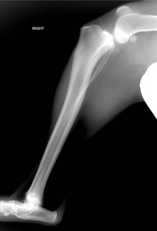 een knie met zeer steil tibiaal plateau vóór de TPLO